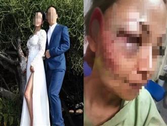 Mang bầu 5 tháng, người vợ bị chồng đánh đập tới tấp vì tra hỏi chuyện ngoại tình