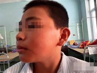 Nam sinh lớp 6 bị cô giáo bắt bạn học tát hơn 200 cái phải nhập viện: Hoảng loạn nhớ lại ngày kinh hoàng