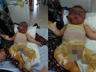 Người cha rớt nước mắt nhìn cảnh con bị trói 2 tay trên giường bệnh: 'Van xin mọi người giúp đỡ để con em được sống tiếp'