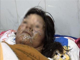 Người phụ nữ bị chồng 'hờ' đánh thừa sống thiếu chết rồi dùng xăng đốt gây bỏng nặng