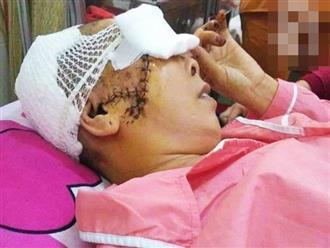 Theo con vào Bình Dương làm mướn, người phụ nữ bị máy kéo sợi bún lóc nát da đầu, cán thủng mắt thương tâm