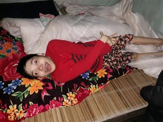 Xót cảnh người phụ nữ tật nguyền nặng 30kg bị hiếp dâm đến mang thai chỉ biết ú ớ trên giường