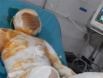 Người vợ bị chồng tẩm xăng thiêu sống đã tử vong, bỏ lại 3 con nhỏ bơ vơ