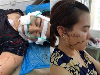 Người vợ ở Bắc Giang bị chồng rạch nát mặt, cắt gân chân vì nguyên nhân không ai ngờ tới