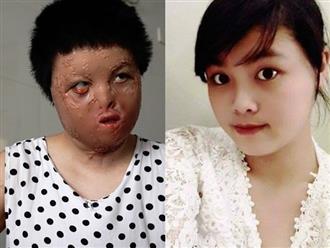 Người vợ xinh đẹp bị chồng dùng xăng đốt vào mùng 2 Tết: Mong lấy lại hình hài, bình yên nuôi con sống quãng đời còn lại
