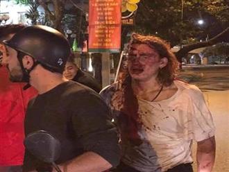 Nhân viên quán bar khuyết tật bị khách nước ngoài đánh tử vong