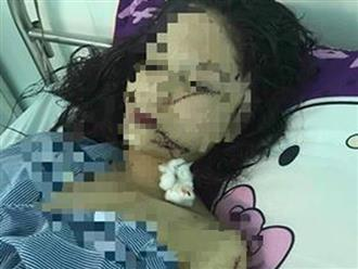 Nóng: Thiếu nữ xinh đẹp 18 tuổi bị 3 cô gái xông vào phòng rạch nát mặt, phải khâu 60 mũi