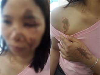 Thông tin bất ngờ vụ nữ chủ tiệm thuốc tố bị tạt axit: Nạn nhân mang theo axit đến điểm hẹn, bác sĩ bị tố cho biết sẽ kiện ngược lại