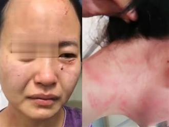 Nữ y tá bị đánh bầm người, cắn vào mặt khi ngăn bệnh nhân mắc Covid-19 trốn khỏi khu cách ly