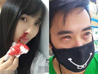 Ô nhiễm không khí ở Bangkok đặc biệt nghiêm trọng: người dân đau mắt, khó thở, hắt hơi ra máu