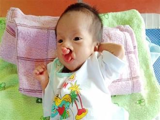 Phép màu đến với bé trai 2 tháng tuổi nặng chỉ 2 ký, mẹ nghèo không đủ tiền đưa con đi chữa bệnh