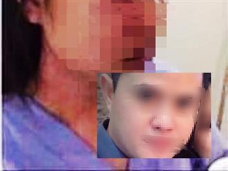 Sức khỏe nữ nhân viên nghi bị bác sĩ Bệnh viện T.Ư Huế hành hung hiện ra sao?