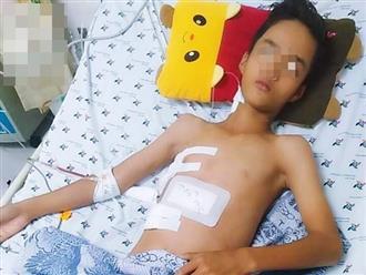 Tai nạn đau lòng: Đi làm mướn nuôi cha tâm thần, bé trai 13 tuổi bị thanh sắt máy cắt lúa đâm xuyên thấu ngực