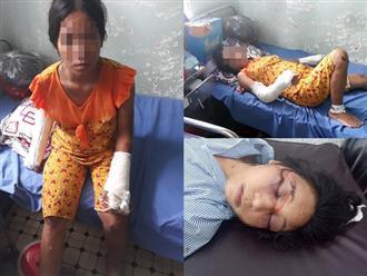 Vợ bầu 7 tháng bị chồng hờ đánh gãy tay chân, vỡ sọ ở Bình Thuận: Bị bạo hành hơn 1 năm qua