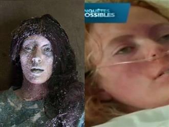 """Thiếu nữ 19 tuổi bị đóng băng đến tím tái, cứng như đá tưởng đã chết thì 6 tiếng sau hồi sinh, kể lại trải nghiệm """"như đùa"""""""