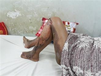 Thiêu sống 3 người vì thấy vợ ngủ chung giường với cha: Người vợ lên tiếng kể lại sự tình