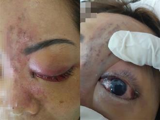 Tiêm filler nâng mũi, nữ sinh viên 20 tuổi ở Sài Gòn đối diện nguy cơ hoại tử da, mù mắt vĩnh viễn