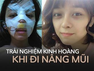 Trải nghiệm kinh hoàng của cô gái trẻ lần đầu nâng mũi sẽ khiến nhiều người nghĩ lại nếu định 'dao kéo'