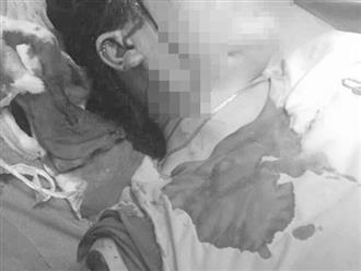Bình Thuận: Nghi chồng ngoại tình, vợ hẹn gặp tình địch rồi dùng dao cạo mủ cao su rạch mặt