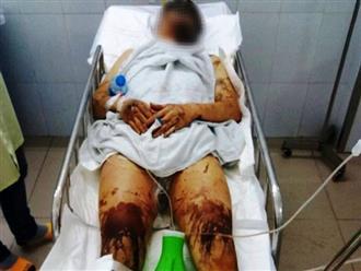 Vụ tạt axit gây rúng động vào mùng 5 Tết: Nạn nhân bỏng toàn thân, khớp và gân chân bị cắt nhiều nhát