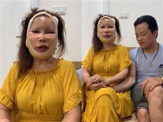 Vừa nâng mũi, cô dâu 62 tuổi tiếp tục thẩm mỹ căng da, gương mặt sưng phù sau phẫu thuật khiến nhiều người choáng váng