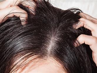 Trị gàu và nấm da đầu như thế nào hiệu quả nhất?