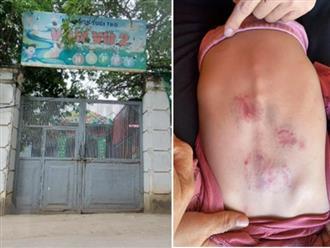 Bắc Giang: Dừng hoạt động cơ sở mầm non nơi bé 2 tuổi bị bạn cùng lớp đánh bầm người