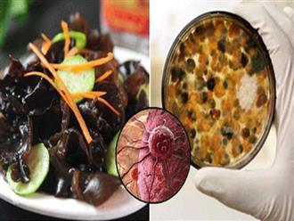5 món ăn gây ung thư đầu bảng nhiều người 'tiếc của' vẫn thường cố ăn mỗi ngày