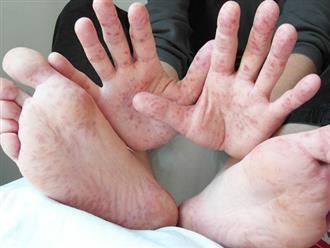 Hiện đang có dịch tay chân miệng, hãy nắm rõ 6 lưu ý của Bộ Y tế để phòng tránh và nhận biết bệnh kịp thời