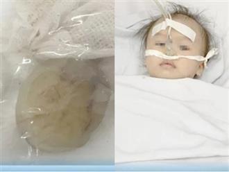 Hóc chôm chôm, bé 12 tháng tuổi suýt mất mạng: Cha mẹ phải làm gì khi trẻ hóc dị vật?