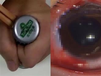 Mở nắp chai nước có ga sai cách, cô bé 13 tuổi bị nắp chai bắn trúng, nhập viện với tình trạng mắt mờ và chảy máu