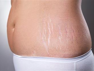 9 chiêu xóa mờ vết rạn da cho mẹ sau sinh với nguyên liệu ngay trong nhà bếp
