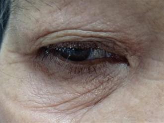 Khiếp sợ căn bệnh ký sinh trùng 'làm tổ' đẻ trứng trên mi mắt người