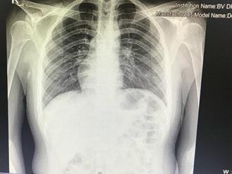 Cấp cứu nam thanh niên bị viêm ruột thừa cấp có phủ tạng đảo ngược, tim nằm bên phải
