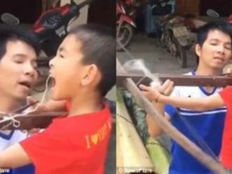 Clip: Ông bố dùng nỏ nhổ răng cho con trai
