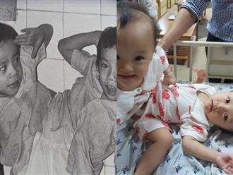 32 năm về trước Việt Nam từng có một ca phẫu thuật tách rời đi vào lịch sử, có điểm tương đồng đặc biệt với cặp song sinh Trúc Nhi - Diệu Nhi