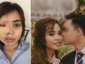 Đã bắt giam cựu thiếu úy Công an trong vụ tạt axit khiến vợ sắp cưới bị biến dạng hoàn toàn gương mặt