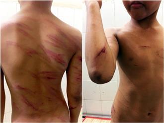 Bé trai 8 tuổi bị cha dượng bạo hành, đánh đập dã man: Thái độ bao che của người mẹ là giáo viên khiến dư luận ngỡ ngàng, căm phẫn