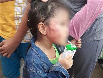 Bố của bé 5 tuổi bị bảo mẫu tát sưng mặt, dọa lấy kéo cắt lưỡi: 'Cô ấy cũng đáng thương'