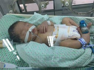 Bé gái 32 tuần tuổi nghi bị mẹ đặt thuốc để ép sinh non đang giành giật sự sống
