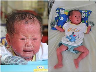Hoàn cảnh đau xót của bé gái bị cha mẹ bỏ rơi khi vừa sinh ra vì người đầy vảy ngứa như da trăn