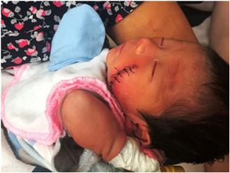Tình tiết ly kỳ khó lí giải trong vụ bé sơ sinh bị chôn sống ở Bình Thuận