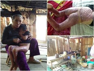 Bà nội của bé trai sắp liệt hoàn toàn vì biến thành ngọn đuốc sống: 'Nguyện làm trâu ngựa cho ai cứu sống cháu tôi'