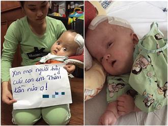 Mẹ quỳ gối, cầu xin mọi người cứu con trai 13 tháng tuổi bị não úng thủy không có tiền phẫu thuật