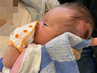 Bé gái sơ sinh ở Lâm Đồng bị mẹ bỏ trong bọc xốp treo trên cây 3 ngày sẽ không thể phát triển bình thường