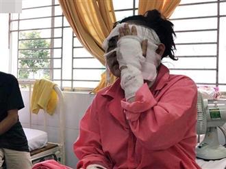 Trần tình đẫm nước mắt của cô gái sắp cưới bị tạt axit hỏng 2 mắt ở Sài Gòn