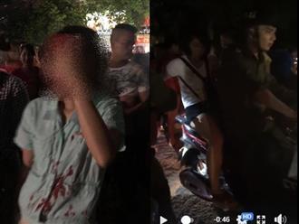 Vụ bồ nhí cầm nón bảo hiểm đánh vợ chảy máu đầu: Chồng giải thích lạ