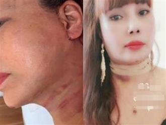 """Cô dâu 63 tuổi ở Cao Bằng khoe vết sẹo chạy dọc phần tai sau 1 tháng phẫu thuật căng da mặt khiến nhiều người """"bủn rủn"""""""