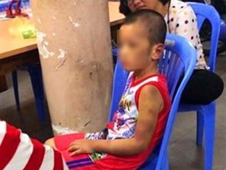 Câu chuyện cuối tuần: Phẫn uất nhìn bé trai bị mẹ ruột và BẠN TÌNH ĐỒNG TÍNH tra tấn dã man, thâm tím hết người