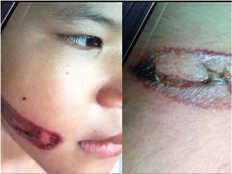 Vụ bé gái bị bạo hành, dí sắt nung đỏ vào người: Hàng xóm tiết lộ về mẹ kế